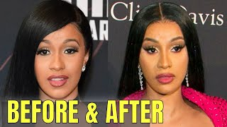 Cardi B: Plastic and Cosmetic Surgery