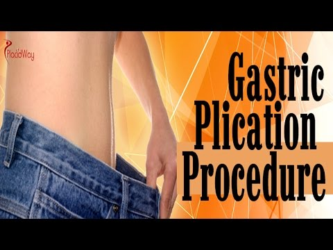 Gastric Plication Overview – Great Weight Loss Surgery Option