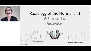 Radiology of the Normal and Arthritic Hip