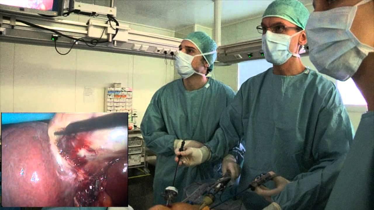 laparoscopische cholecystectomie