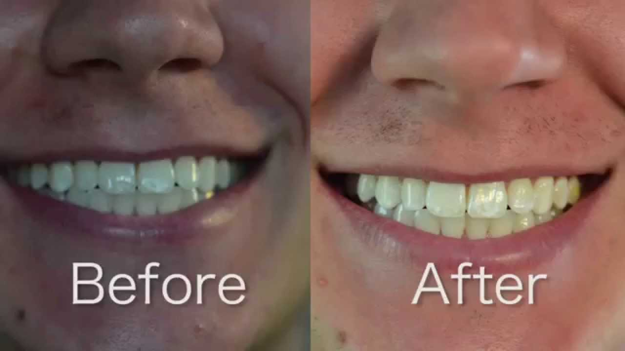 Crest 3d White Whitestrips 1 Hr Express Review And Before After