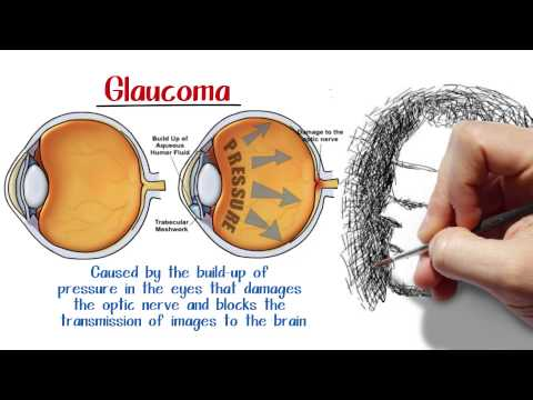 a-torrance-optometry-clinic-answers-common-questions-about-glaucoma