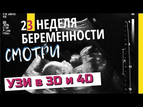 23 неделя беременности. Развитие плода. УЗИ в 3D. Что чувствует беременная. Как выглядит ребенок
