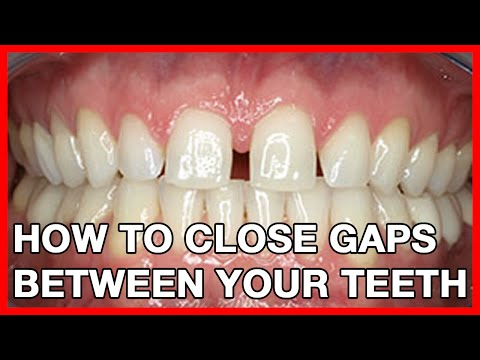How to Get rid of Gaps in Teeth