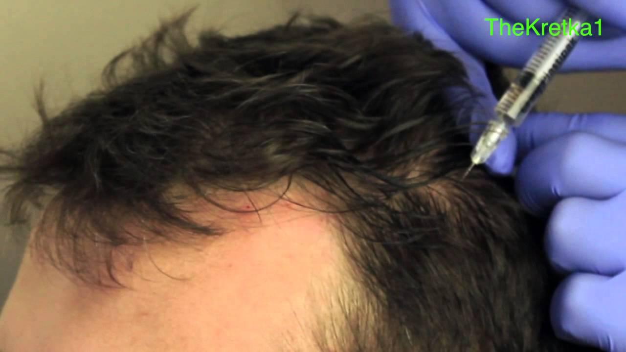 mezoterapia igłowa na wypadanie włosów opinie
