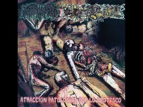 Atracción Patológica por lo Grotesco - Paracoccidi/Corpus Mors [2012](MEX/NIC)|Death Metal/Goregrind from YouTube · Duration:  56 minutes 17 seconds