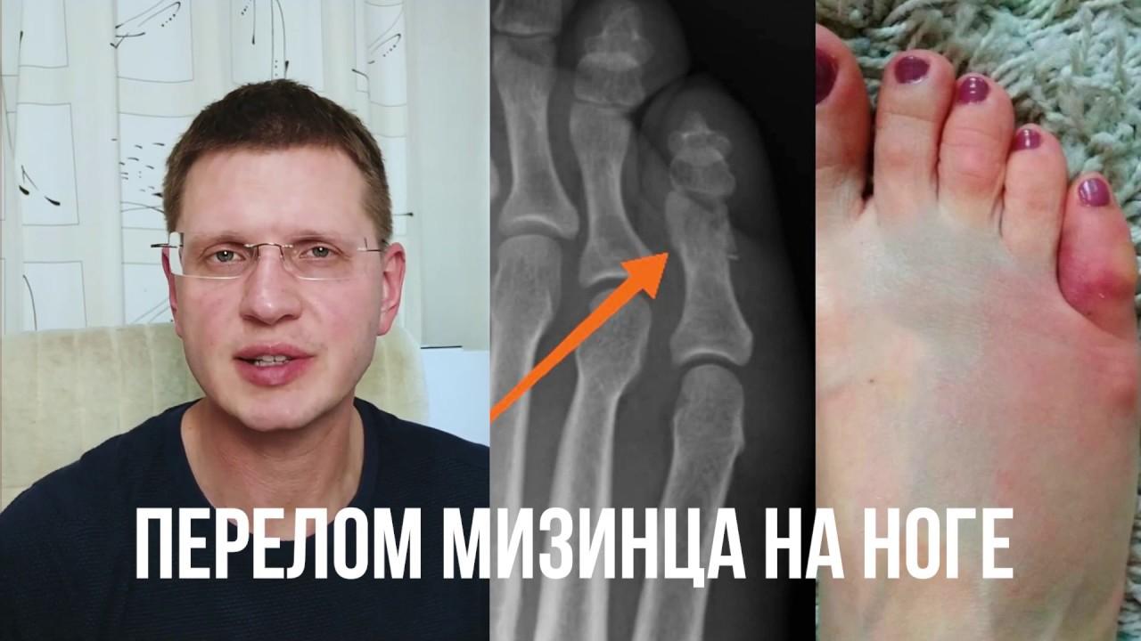 Перелом мизинца на ноге. Как лечить?