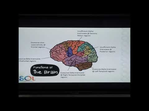 How Does Brainwave Affect Individual of Autism Spectrum Disorder?
