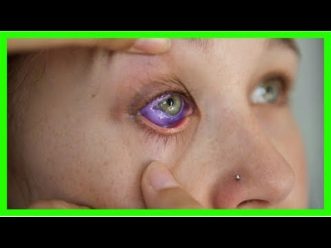 Ontario moves to ban eye tattooing, implanting eye jewelry