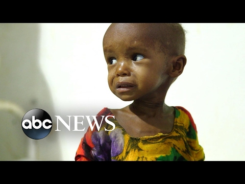 Children in Somalia are malnourished and fighting for their lives