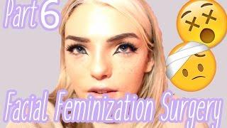 Baixar Facial Feminization Surgery - Week 3! | | Stef Sanjati