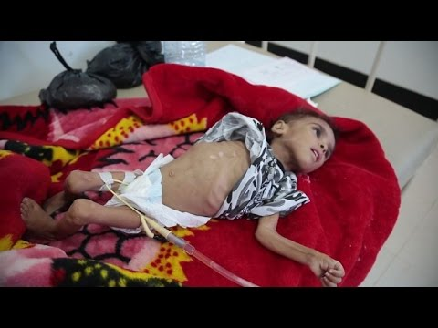 Yemen cholera cases could jump to 300,000 by September: UN