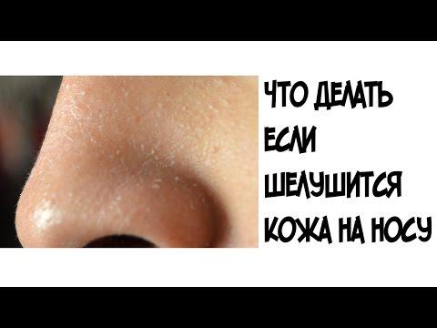Что делать если шелушится кожа на носу