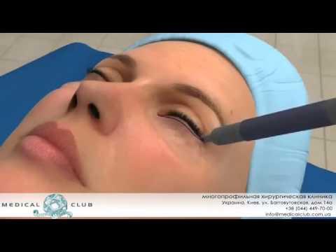 Мешки под глазами: как убрать упражнения косметика