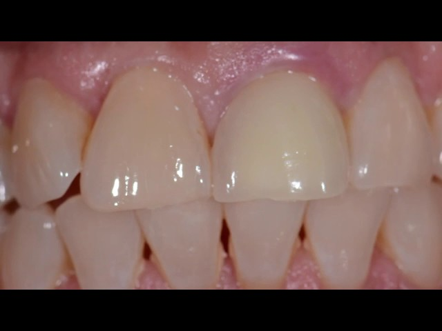 Passo a passo de um caso unitário de Implante dentário