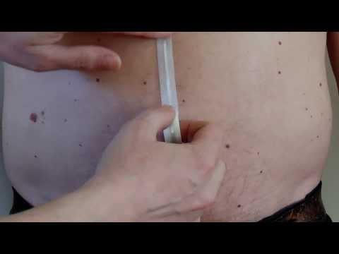 Послеоперационная грыжа на животе: последствия и лечение
