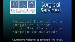 Surgical Removal of Fungal Ball from Maxillary Sinus