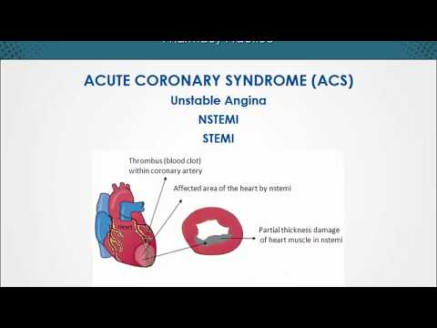 Cardiovascular   Acute Coronary Syndrome   EduRx