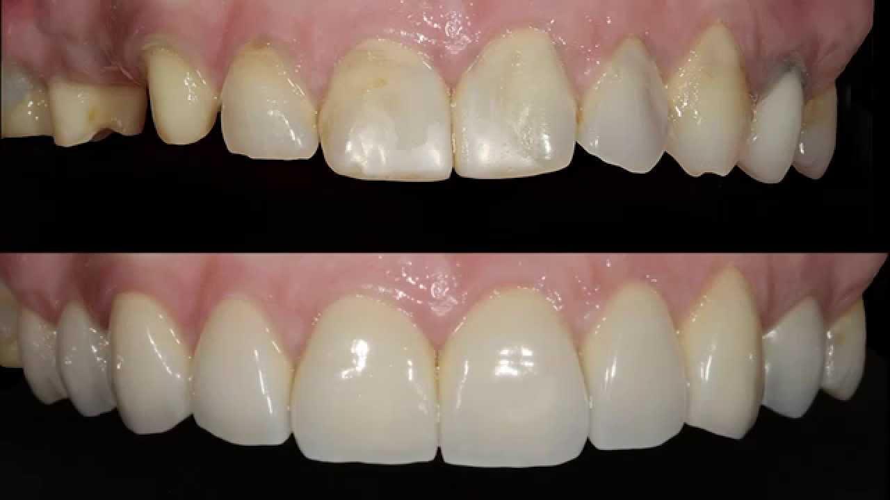 Resultado de imagen de coronas dentales