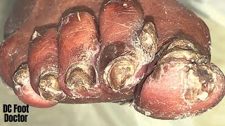 No More Hole In The Toe: Part 1 - Trimming Dystrophic Toenails