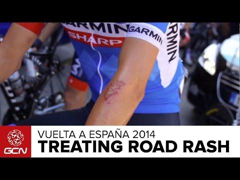 How To Treat Road Rash | Vuelta A España 2014