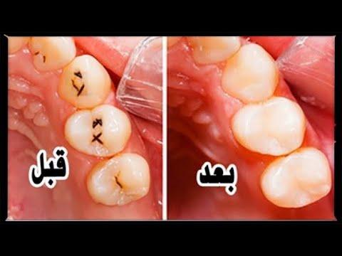 تخلصوا من تسوس الأسنان ومشاكل اللثة بهذه الطريقة!