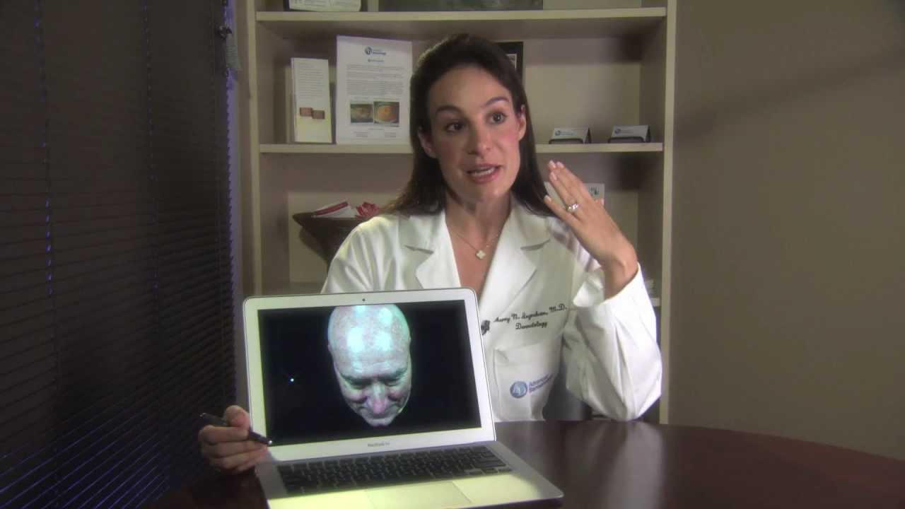 Dr  Sherry Ingraham of Advanced Dermatology Speaks About Actinic Keratoses  Treatments