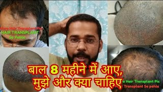 8 Months Real Result of Best Hair Transplant Surgery in India