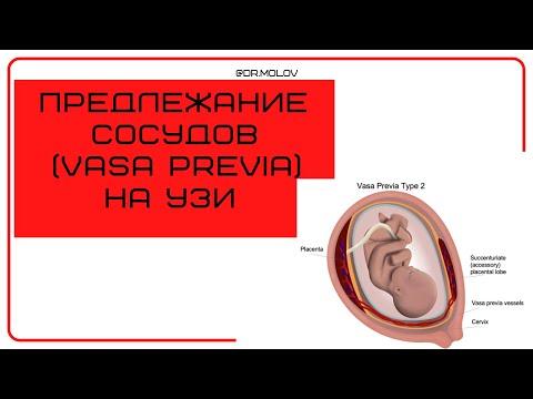 Предлежание сосудов (Vasa Previa) на УЗИ по беременности (скрининг)