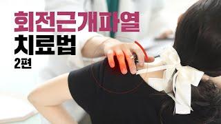 [평촌서울나우병원] 회전근개파열 치료법 - 2편 -