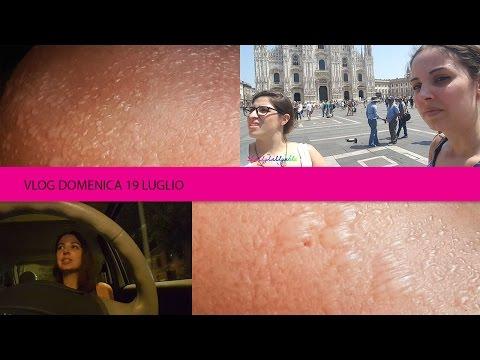 Bolle schifose sulla pelle e shopping  a Milano - con Chiara e Marco - VLOG Domenica 19 Luglio