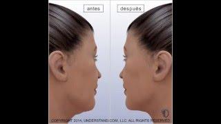 Ritidectomía baja (Estiramiento de cara o lifting)