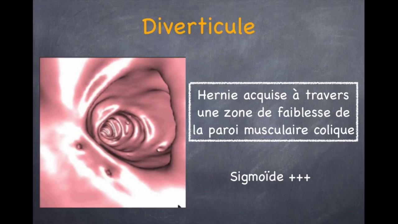 Diverticulose Colique et Sigmoïdite - 1. Diverticule, diverticulose ...