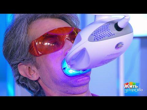 Отбеливание зубов. Жить здорово!  06.02.2019