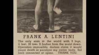 Francesco Lentini, storia di un uomo con tre gambe