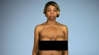 Tiffany 'New York' Pollard Gets Deformed Breast Implants Fixed