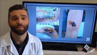 Da causas na de venosa cirurgia ligadura perna antes de ferimento aberta