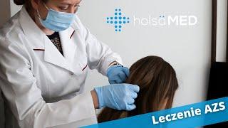 Jak leczy się atopowe zapalenie skóry (AZS)?