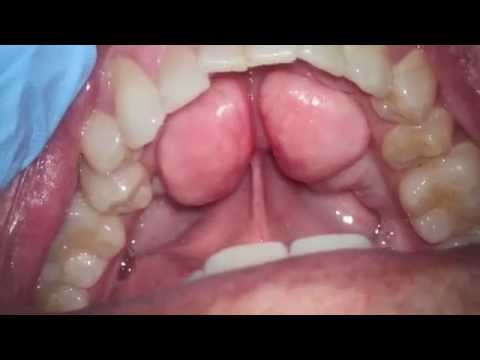 what's this bump in my mouth -  a lingual or palatal tori