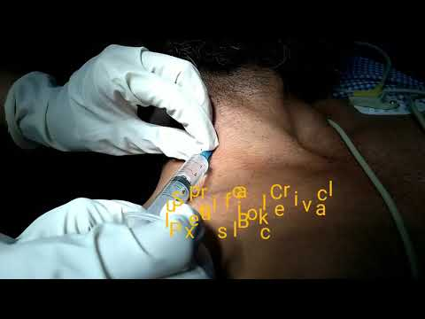 Clavicle Plating Interscalene block