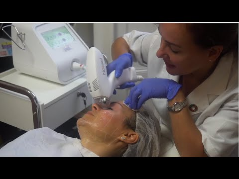 Download Review of Tixel skin resurfacing treatment for wrinkles and sagging eyelids