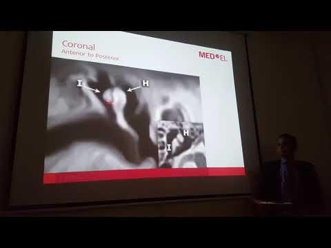 temporal radiology med el 3 #MedicalRadiology