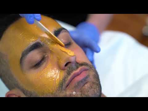 Removing Dark Spots with Enlighten Peel | Melasma Treatment | Hyperpigmentation Treatment