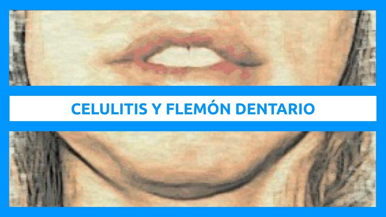concepto de celulitis en odontologia