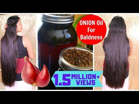 Homemade Onion &