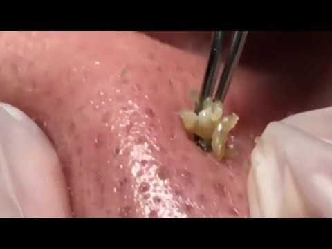 Best Extracting Juicy Blackheads On Nose