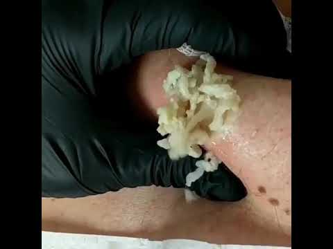 20 Grossest Zit Popping Videos Of All Time - Pimple Popping 2019