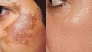 Masque  Eclaircissant  pour Traiter facilement la Pigmentation de la Peau, les Tâches et les cicatri