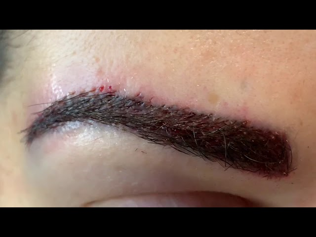 Dallas Eyebrow Hair Transplant Tattoo Correction Immediately After
