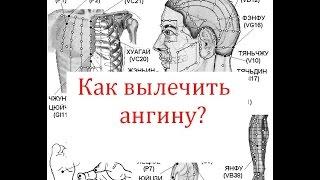 Как вылечить Ангину?(Как вылечить ангину? Самое важное это успеть не заболеть если почувствовали, что начинает першить в горле..., 2015-12-06T21:03:51.000Z)